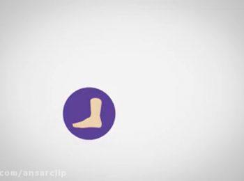 موشن گرافیک | دیابت